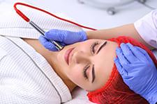 Terapia Microdermoabrasión